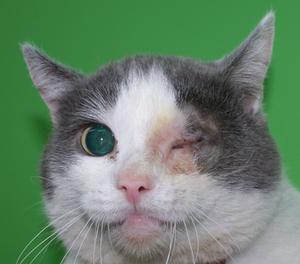 удаление глазного яблока (30 дней спустя)